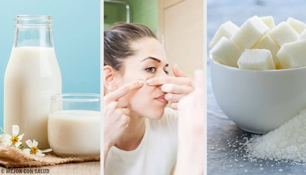 Vier maskers om een onzuivere huid te reinigen