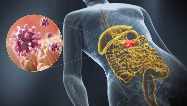Buikgriep: iedere oorzaak die je moet weten