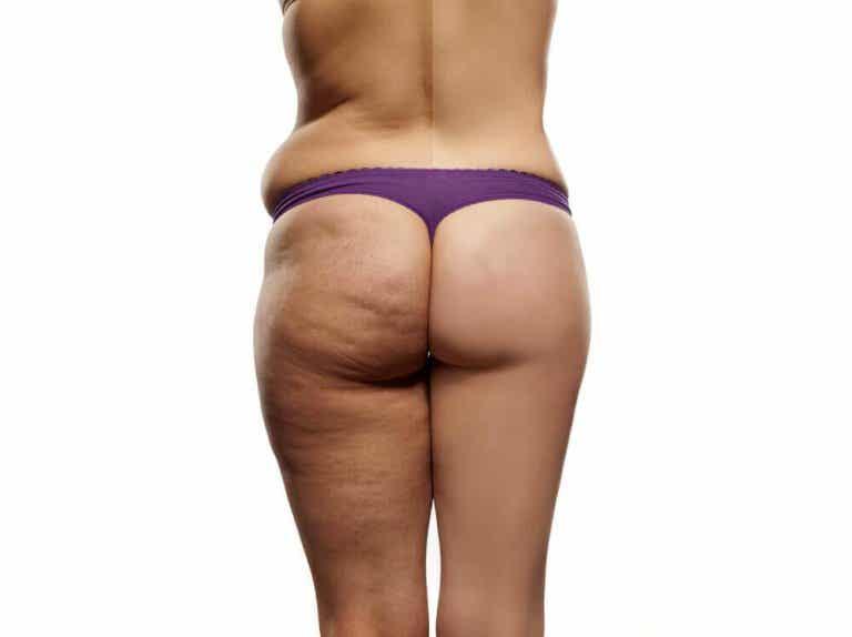 Het perfecte anti-cellulitis dieetplan voor jou