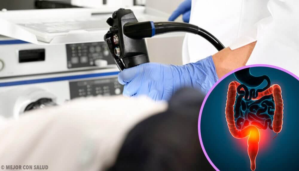Darmkanker behandelen: alles wat je moet weten