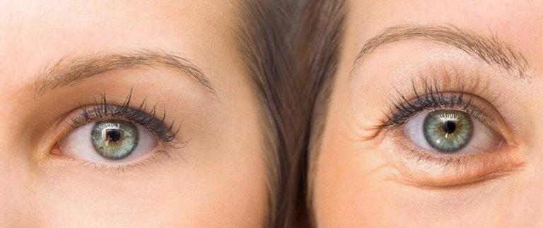 Hangende oogleden liften met vijf natuurlijke ingrediënten