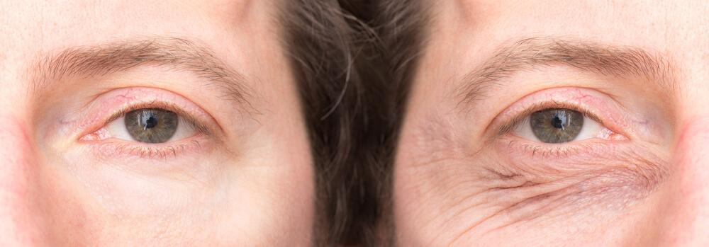 Meer informatie over hangende oogleden