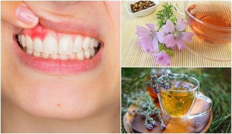 5 natuurlijke huismiddeltjes tegen tandvleesontsteking