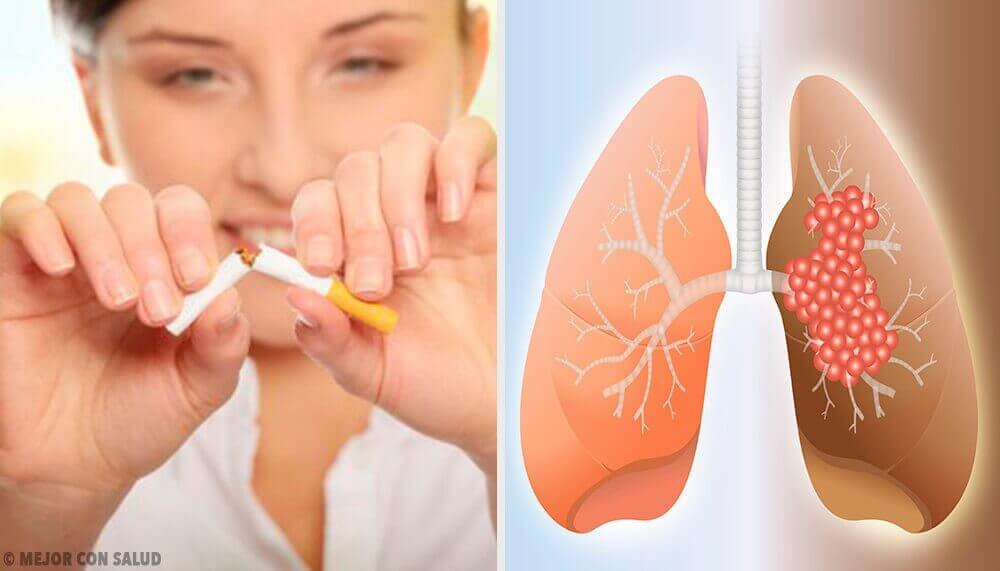 De oorzaken en diagnose van longkanker