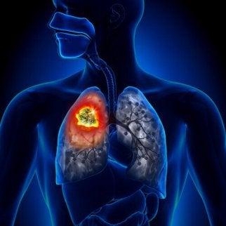 Soorten longkanker