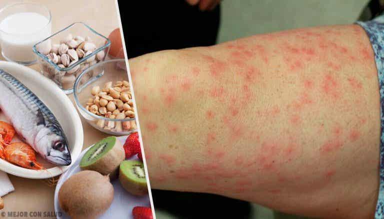 De meest voorkomende voedselallergieën en goede vervangers