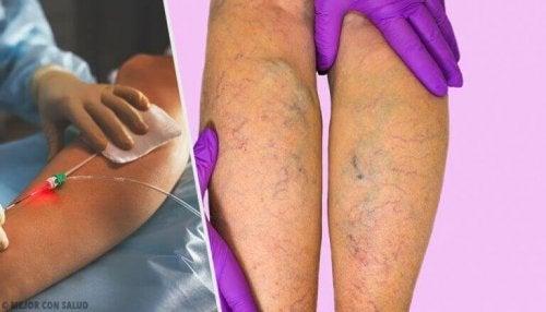 wat kun je doen tegen spataderen