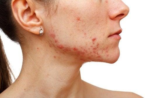 Wang en kin met acne