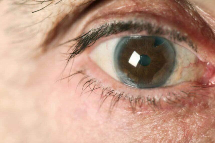 Wat is glaucoom?