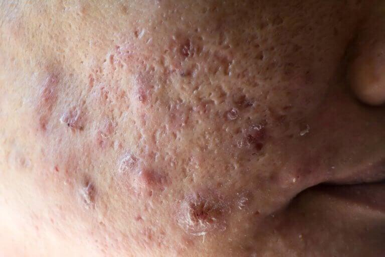 Basilicum tegen acne