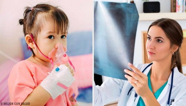 Alles wat je moet weten over de behandeling van een longontsteking