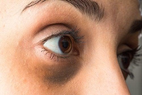 Hoe wallen onder je ogen verbergen met etherische olie
