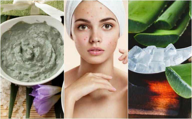 5 natuurlijke behandelingen voor acne in het gezicht