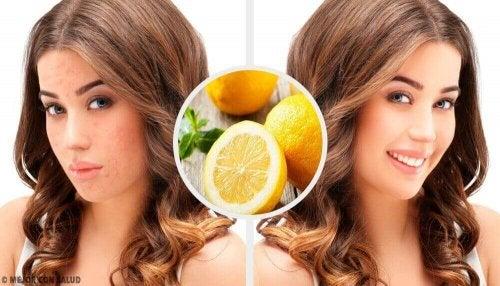 Nare acne-littekens verwijderen met deze 4 huismiddeltjes