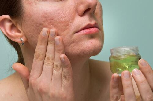 Oorzaken van acne-littekens