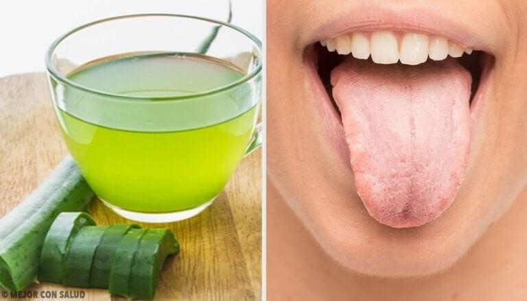 Een witte tong laten verdwijnen met 7 natuurlijke remedies