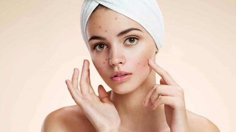Jonge vrouw met acne
