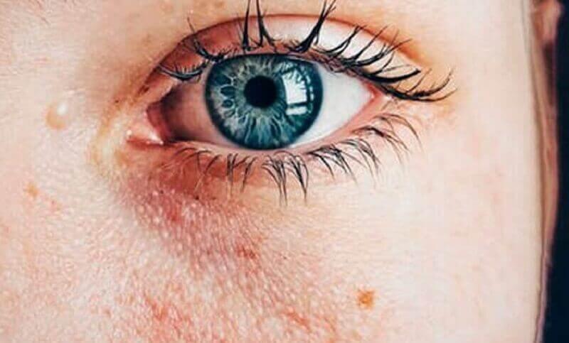 Beschadigde huid