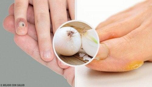 Eelt op je handen en voeten verwijderen met natuurlijke middelen