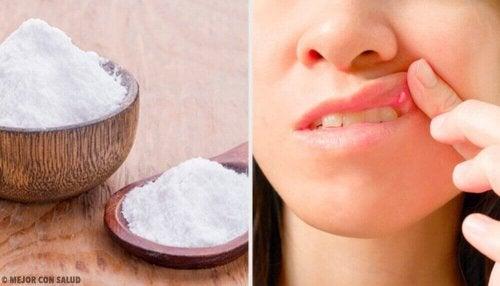 Natuurlijke remedies tegen mondzweren