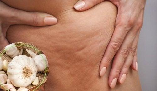 5 manieren om cellulitis te bestrijden