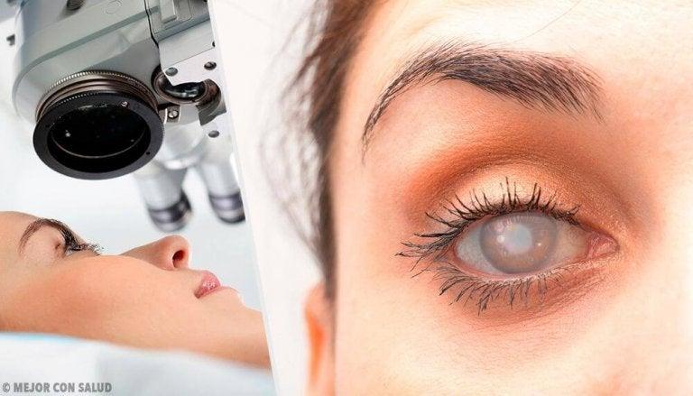 8 symptomen van cataract en hoe deze te verlichten
