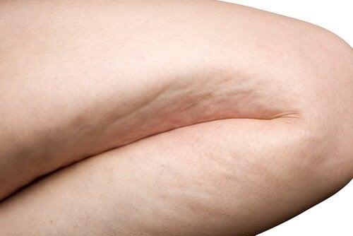 Cellulitis verergeren