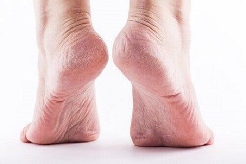 De symptomen van eelt op de voeten