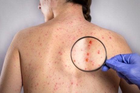 Herpes op de rug