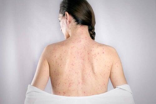 Herpes op de rug behandelen met 5 natuurlijke remedies