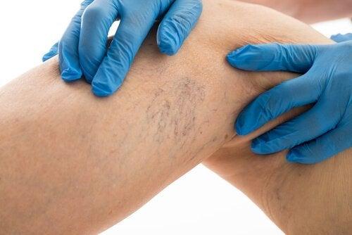 Om spataderen te verminderen moet je 8 basisregels volgen