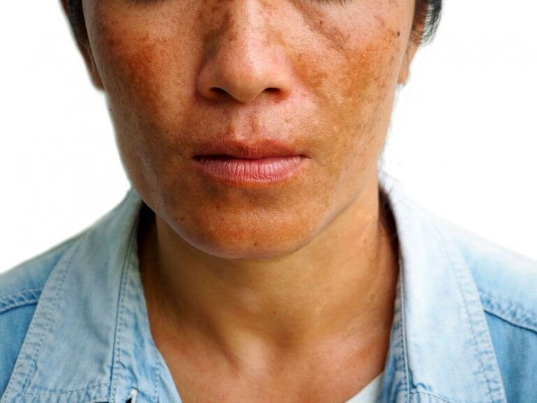 Drie manieren om melasma te behandelen