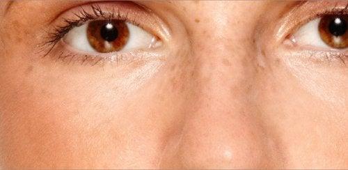 Melasma in het gezicht