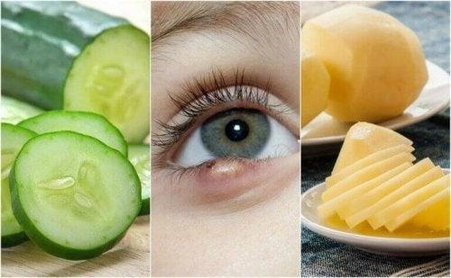 5 natuurlijke oplossingen tegen oogstrontjes