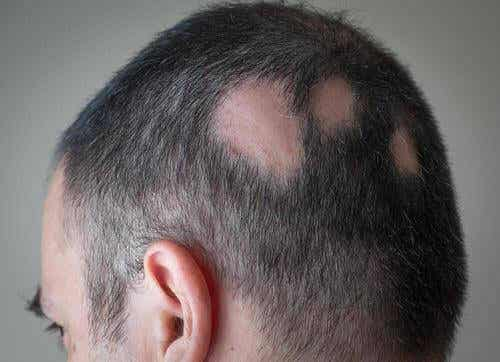 Hoe je alopecia kan bestrijden met natuurlijke remedies