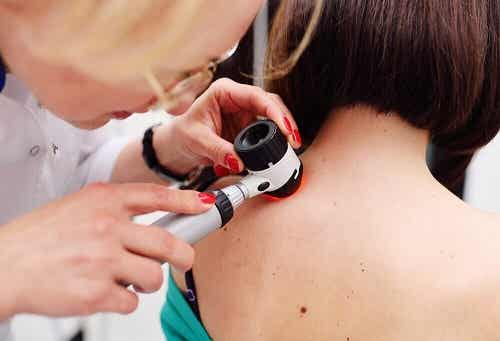 Zijn melanomen de enige ernstige vormen van huidkanker?