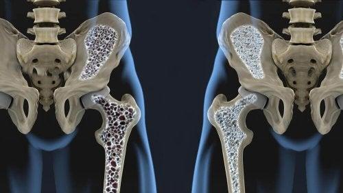 Hoe je osteoporose kan voorkomen met deze 6 voedingstips