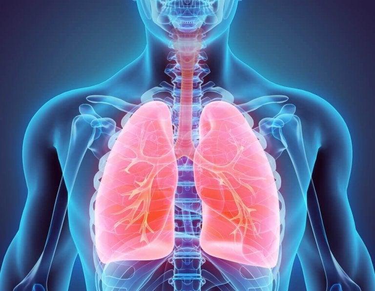 Natuurlijke remedies om bronchiëctasie te bestrijden