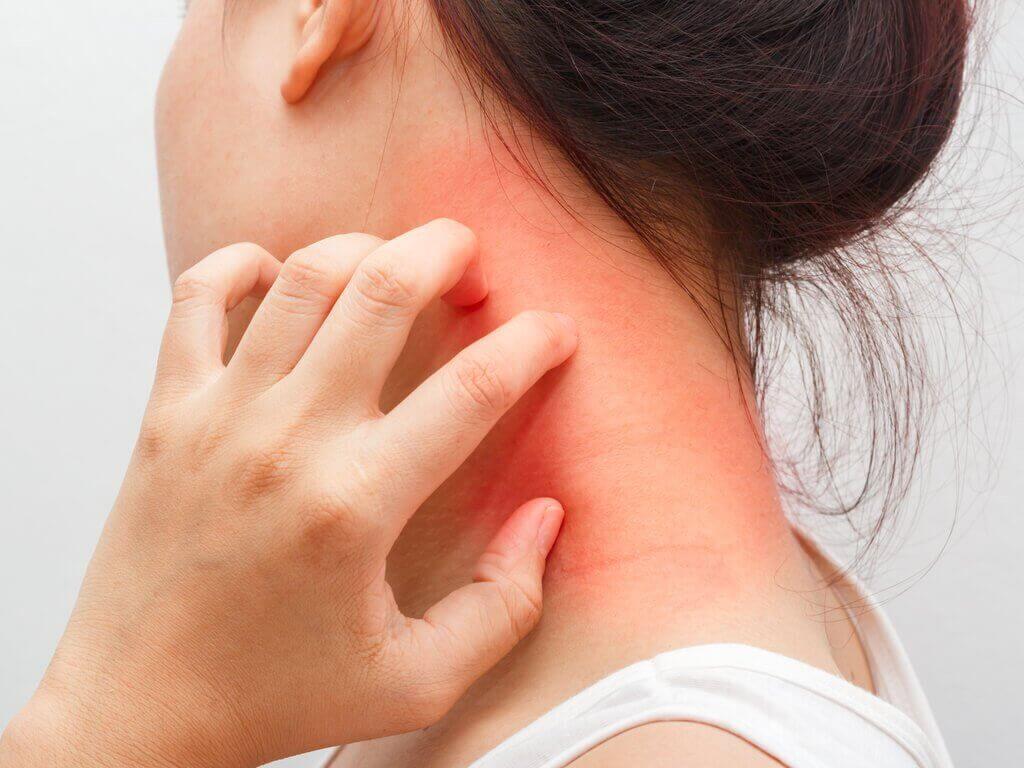 Dermatitis en huiduitslag