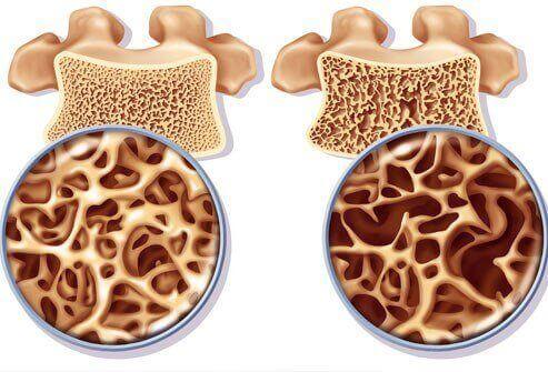 Een natuurlijke remedie tegen osteoporose die rijk aan calcium is