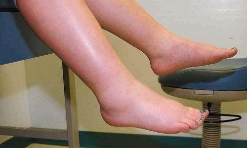 Zwelling is een symptoom van waterretentie
