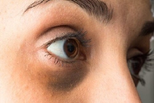 De oorzaken van donkere kringen onder de ogen