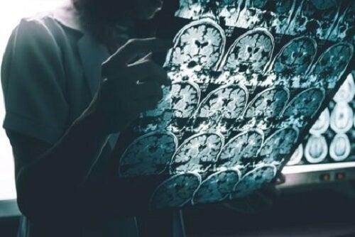 De voornaamste symptomen van de ziekte van Alzheimer