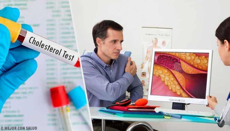 Waarom is cholesterol een risicofactor?