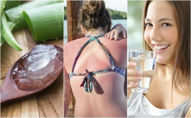 9 manieren om zonnebrand te behandelen