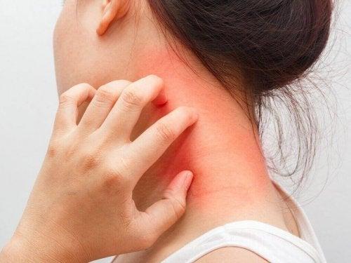 Daarnaast verlicht het de gevolgen van dermatitis