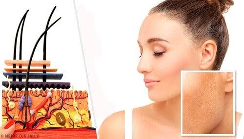Soorten huidvlekken en wat de mogelijke oorzaken zijn