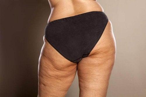 cellulitis komt vaak voor bij vrouwen die lijden aan obesitas