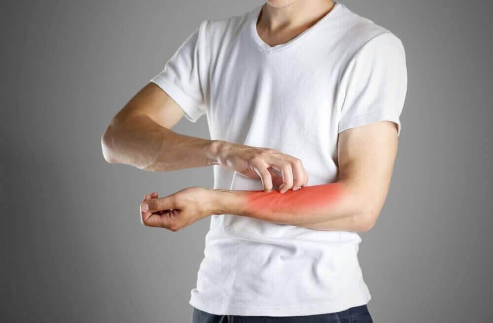 symptomen van eczeem