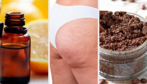Natuurlijke remedies om cellulitis te verminderen